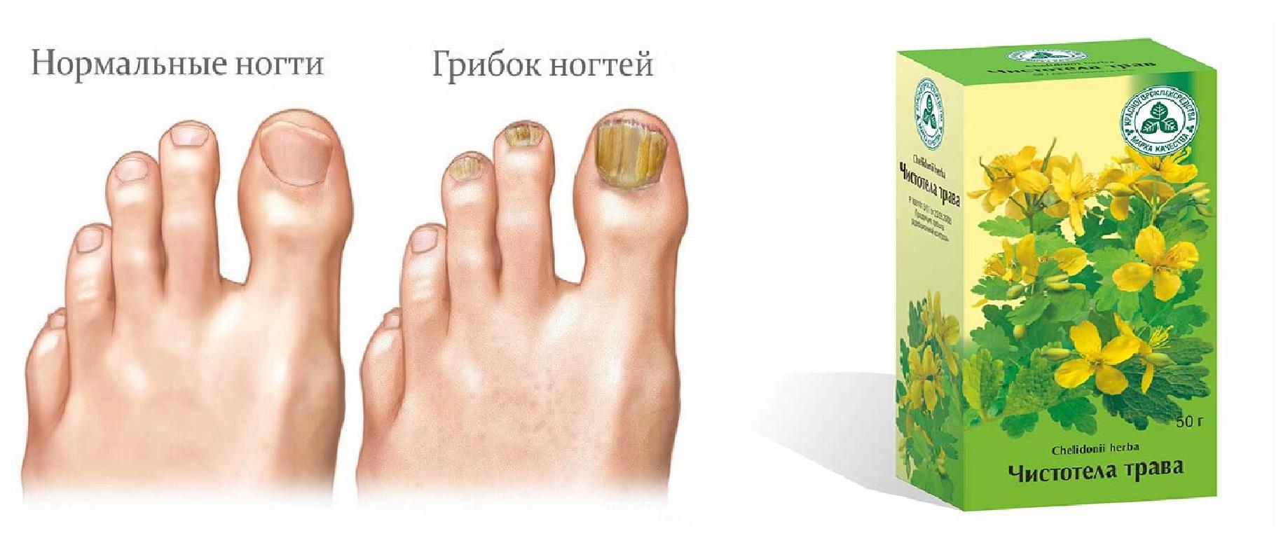 Травы от грибка ногтей на ногах: какие лучше принимать