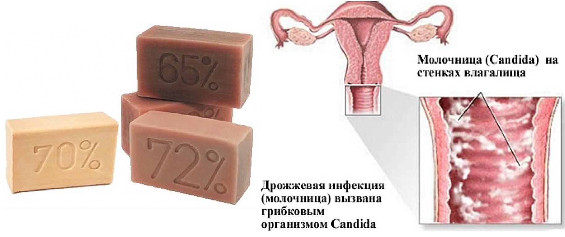 Свечи от воспаления в гинекологии : названия и способы применения