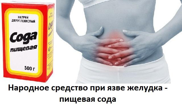 Можно ли пить пищевую соду при язве желудка