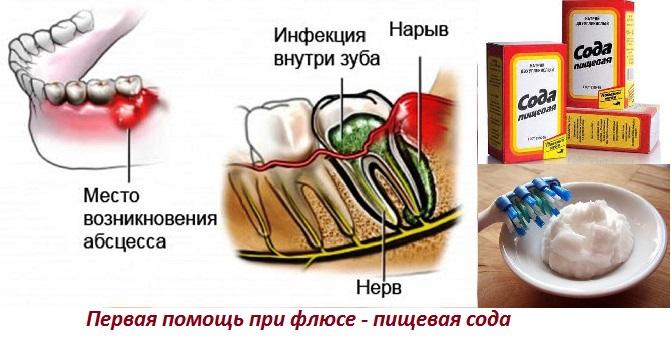 Как лечить флюс в домашних условиях быстро
