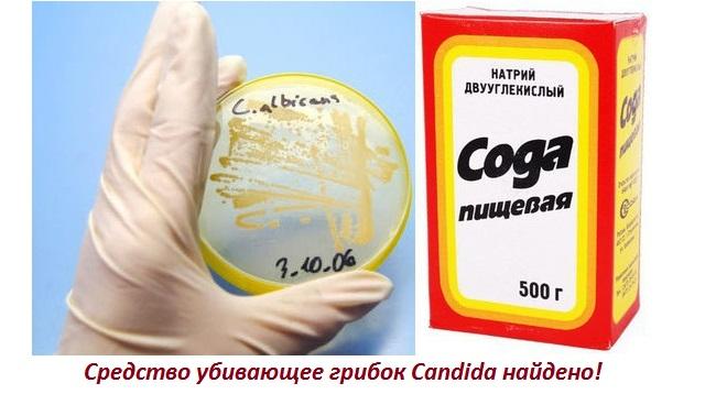 Лечение кандидоза полости рта содой