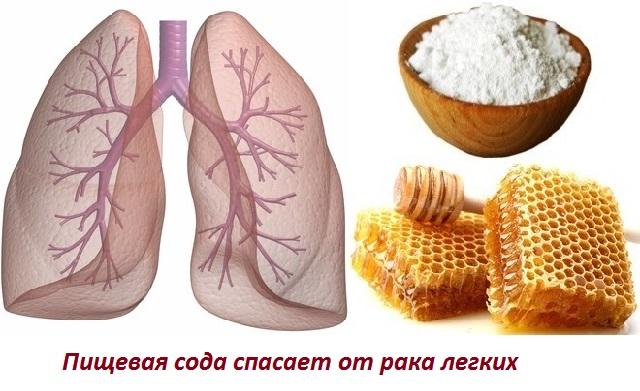 Лечение содой рака легких схема лечения