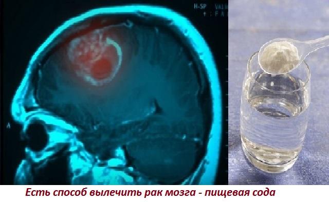 Лечение рака головного мозга народными средствами и содой