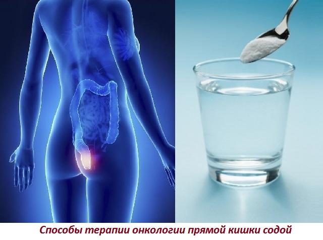 Можно ли при раке желудка делать клизмы