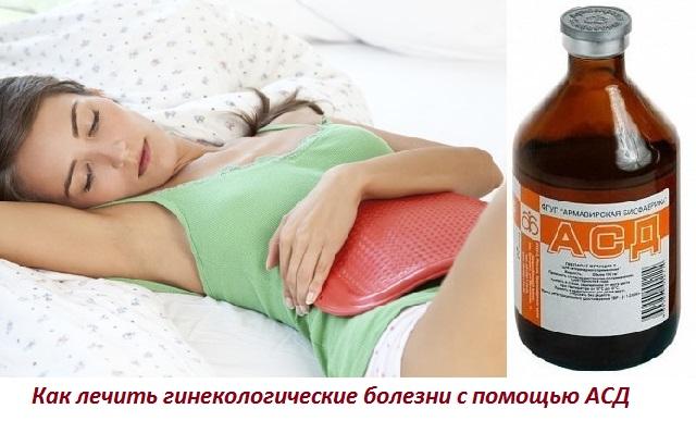 АСД в гинекологии. Лечение женских болезней препаратом АСД