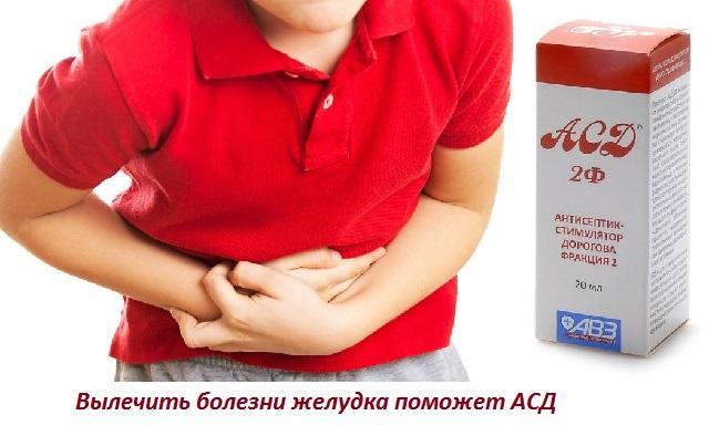 Асд 2 при раке желудка