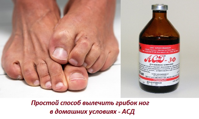 Асд лечить грибок ногтей на ногах