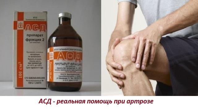 Асд при артрозе коленного сустава