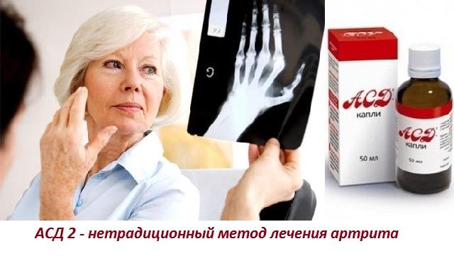 Применение АСД 2 для лечения суставов, компрессы из фракции при суставных болях