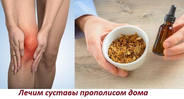 Лечение прополисом ревматоидного артрита - Все про суставы