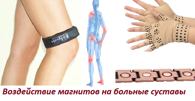 Магнитотерапия для суставов в домашних условиях