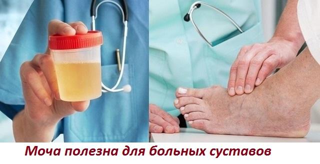 Лечение суставов уринотерапией, компрессы от артроза и артрита