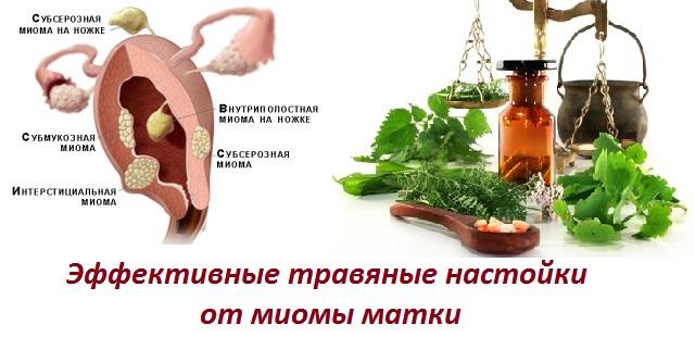 Пион для лечения миомы матки
