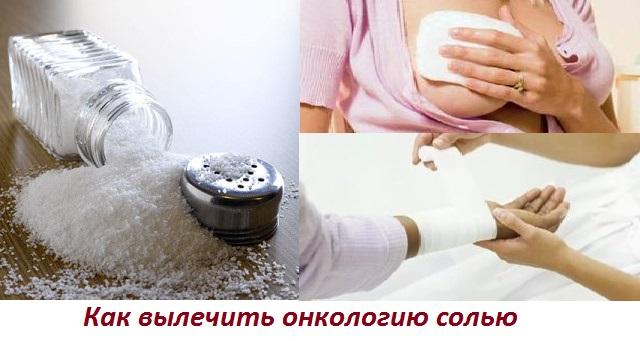 Соль против рака по Болотову: молочной железы, лёгких, кожи, горла