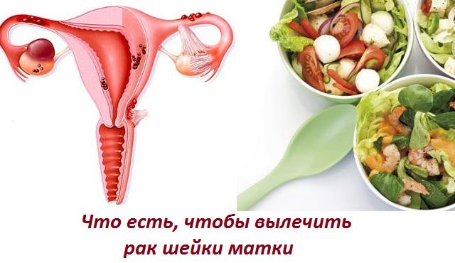 Диета при лечении рака шейки матки