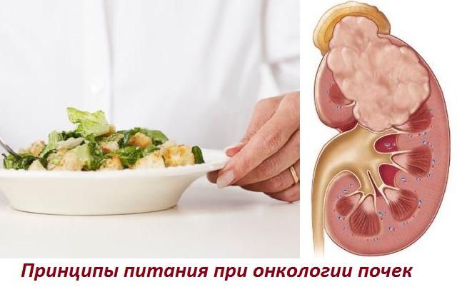 Какая диета при опухоли почек