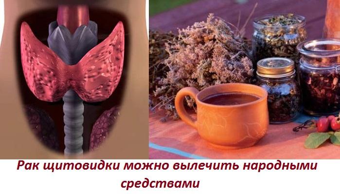 Лечение содой при раке щитовидной железы