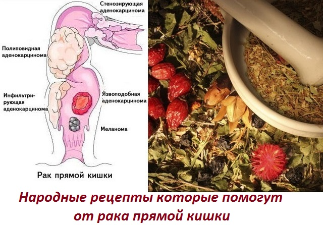 Рак прямой кишки с метастазами в печень лечение народными средствами