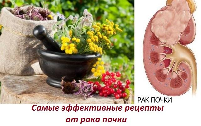 Лечение рака почки народными средствами