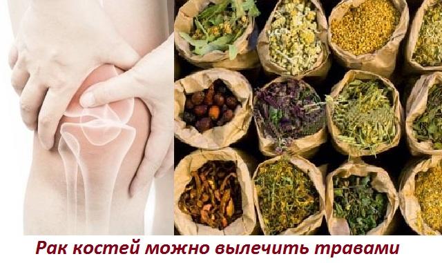Лечение рака костей народными средствами