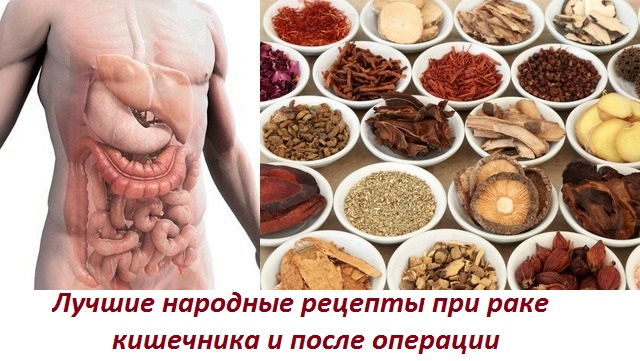 Лечение народными средствами рака толстой кишки