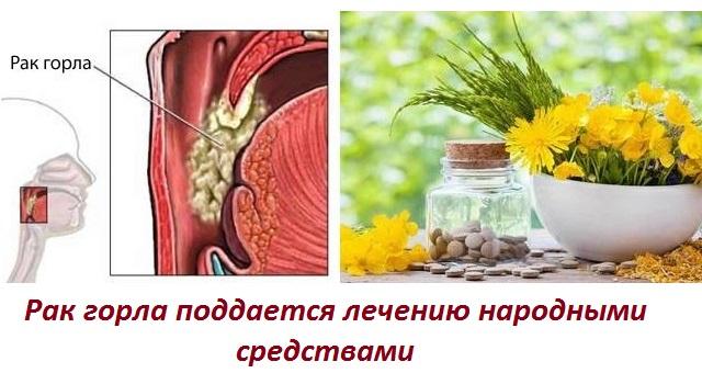 Рак гортани лечение народными средствами отзывы