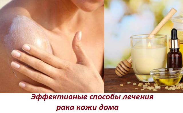 Рак кожи - народное лечение рака кожи