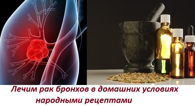 Рак бронхов лечение народные способа thumbnail