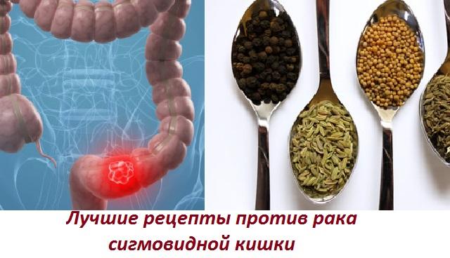 Лечение народными методами рака сигмовидной кишки