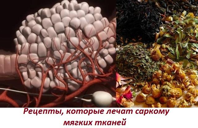Народные средства для лечения саркомы мягких тканей