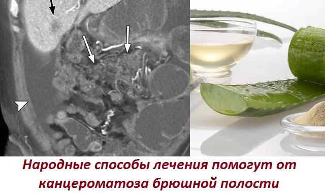Лечение народными средствами рак брюшной thumbnail