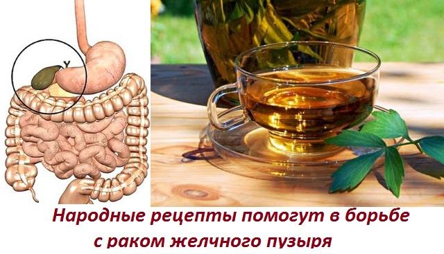 Народные средства для лечения рака желчного пузыря thumbnail