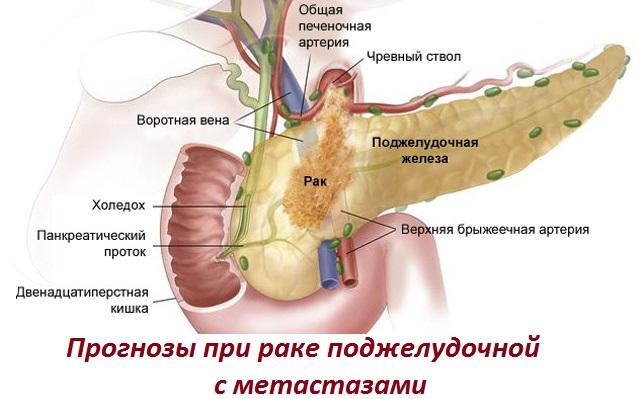 Рак поджелудочной железы с метастазами в печень