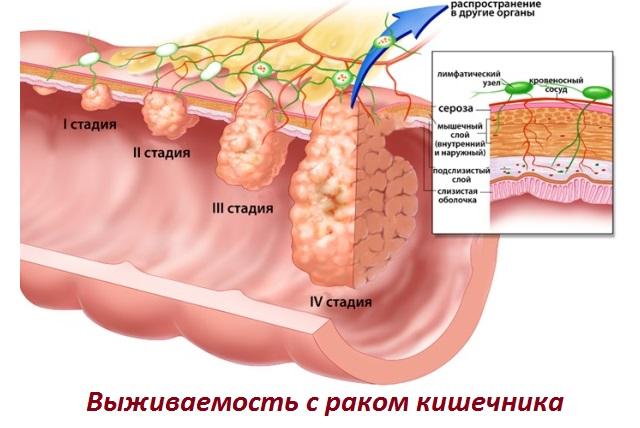 Сколько живут при раке прямой кишки с метастазами в печень