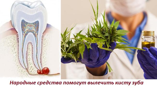 Киста на корне зуба лечение народными средствами