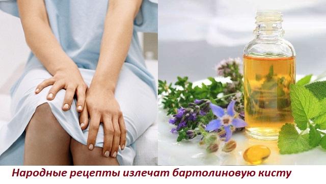 Лечение народными средствами киста бартолиновой железы Современные способы лечения