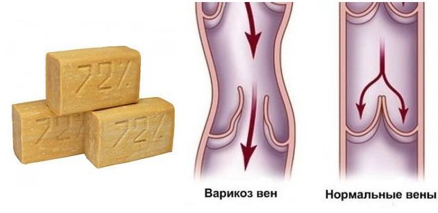 Хозяйственное мыло от варикоза рецепт