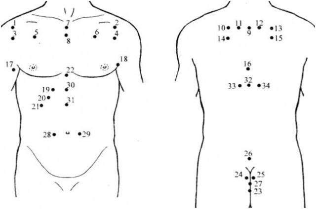 Как ставить пиявки при бронхиальной астме