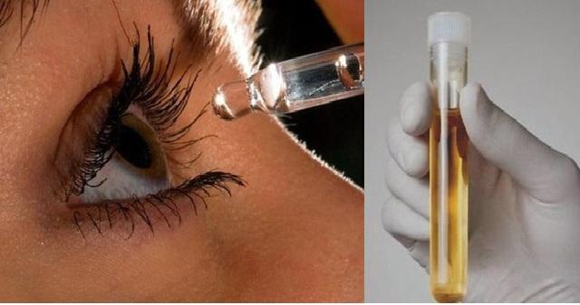 Промыть глаза мочой при глаукоме thumbnail